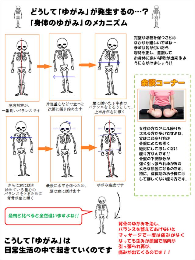 身体のゆがみのメカニズム